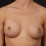Breast Augmentation 410 - Case #6 After