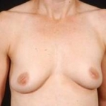 Breast Augmentation 410 - Case #7 Before