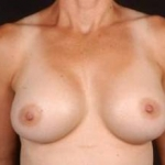 Breast Augmentation 410 - Case #7 After
