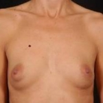 Breast Augmentation 410 - Case #8 Before