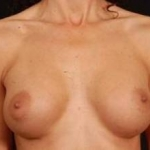Breast Augmentation 410 - Case #8 After