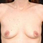 Breast Augmentation 410 - Case #9 Before