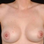 Breast Augmentation 410 - Case #9 After
