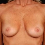 Breast Augmentation 410 - Case #10 Before