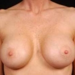 Breast Augmentation 410 - Case #10 After