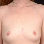 Breast Augmentation 410 - Case #11 Before