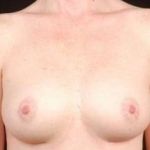 Breast Augmentation 410 - Case #11 After