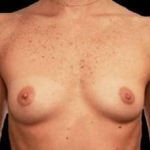 Breast Augmentation 410 - Case #12 Before