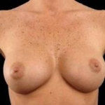 Breast Augmentation 410 - Case #12 After