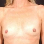 Breast Augmentation 410 - Case #13 Before