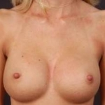 Breast Augmentation 410 - Case #14 After
