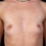 Breast Augmentation 410 - Case #15 Before