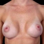 Breast Augmentation 410 - Case #15 After