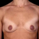 Breast Augmentation 410 - Case #16 Before