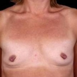 Breast Augmentation 410 - Case #17 Before
