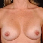 Breast Augmentation 410 - Case #17 After