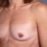 Breast Augmentation 410 - Case #18 Before