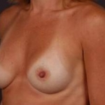 Breast Augmentation 410 - Case #18 After