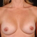 Breast Augmentation 410 - Case #19 After