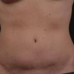 Abdominoplasty - Case #23 Before