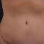 Abdominoplasty - Case #23 After