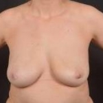 Breast Fat Grafting - Case #1 Before