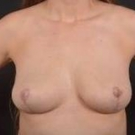 Breast Fat Grafting - Case #1 After