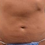 Abdominoplasty - Case #21 Before