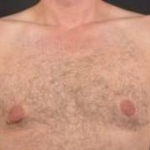 Gynecomastia - Case 1 Before