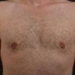 Gynecomastia - Case 1 After