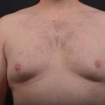 Gynecomastia - Case 2 Before