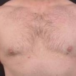 Gynecomastia - Case 2 After