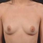 Breast Augmentation Silicone Gel - Case #75 Before
