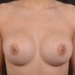 Breast Augmentation Silicone Gel - Case #75 After