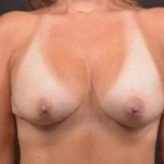 Breast Augmentation Silicone Gel - Case #73 After