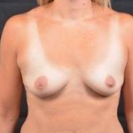 Breast Augmentation Silicone Gel - Case #72 Before