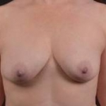 Breast Augmentation Silicone Gel - Case #71 Before