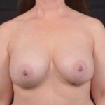 Breast Augmentation Silicone Gel - Case #71 After