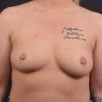 Breast Augmentation - Case #69 Before