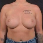 Breast Augmentation - Case #69 After
