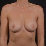 Breast Augmentation - Case #68 Before