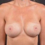 Breast Augmentation - Case #68 After