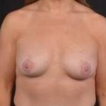 Breast Augmentation Silicone Gel - Case #67 After