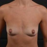 Breast Augmentation Silicone Gel - Case #66 Before
