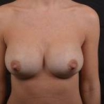 Breast Augmentation Silicone Gel - Case #66 After