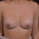 Breast Augmentation Silicone Gel - Case #65 After