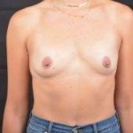 Breast Augmentation Silicone Gel - Case #64 Before