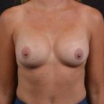 Breast Augmentation Silicone Gel - Case #64 After