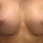 Breast Augmentation Silicone Gel - 61 After