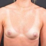 Breast Augmentation Silicone Gel - Case #61 Before
